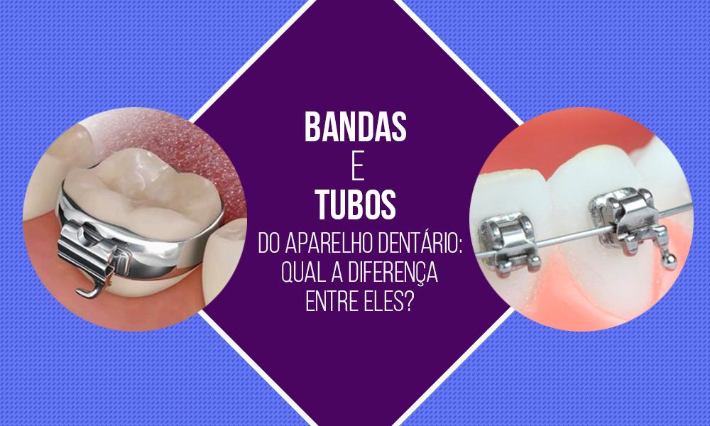 Bandas-e-tubos para aparelho dentário_Clinodente
