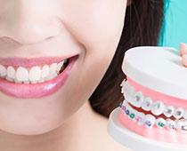 Imagem de Aparelhos Dentários