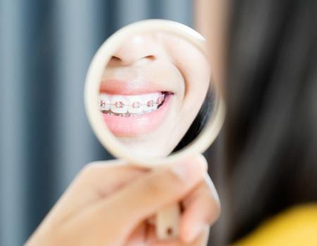 Imagem ilustrativa sobre https://clinodente.com.br/dicas-para-quem-vai-usar-aparelho-ortodontico/