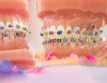 Imagem ilustrativa sobre https://clinodente.com.br/quanto-custa-o-aparelho-ortodontico/