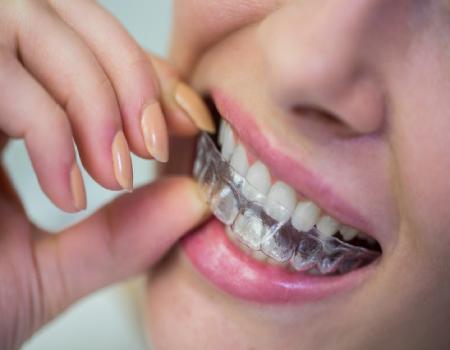 Imagem ilustrativa sobre https://clinodente.com.br/alinhadores-dentarios-transparentes/