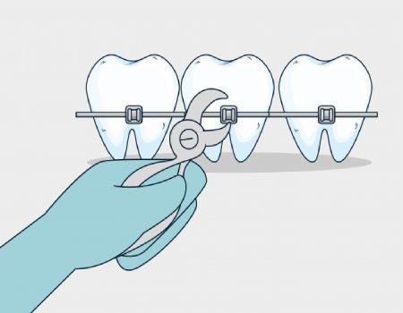 Imagem ilustrativa sobre https://clinodente.com.br/quanto-tempo-dura-o-tratamento-ortodontico/